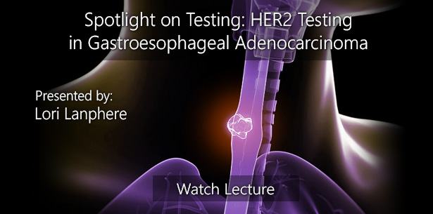 Spotlight on Testing: HER2 Testing in Gastroesophageal Adenocarcinoma by Lori Lanphere