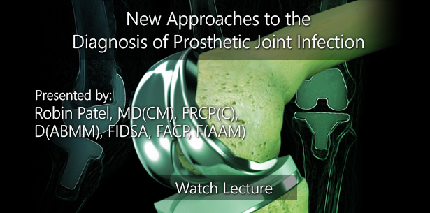 New Approaches to the Diagnosis of Prosthetic Joint Infection by Robin Patel, MD(CM), FRCP(C), D(ABMM), FIDSA, FACP, F(AAM)