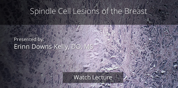 Spindle Cell Lesions of the Breast by Erinn Downs-Kelly, DO, MS